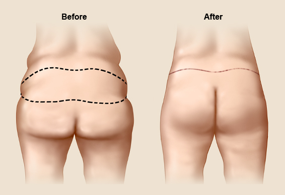 image of before and after buttock lift