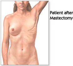 Patient after Mastectomy