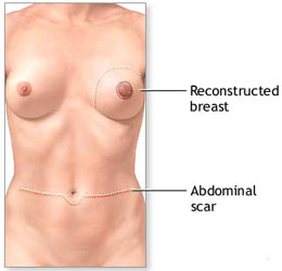 Recovery from a TRAM Flap Reconstructed Breast