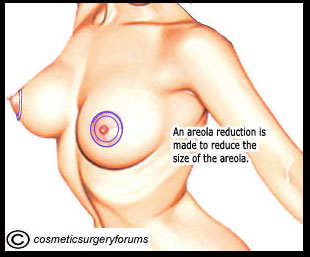 Areola Reduction - An areola reduction is made to reduce the size of the areola.