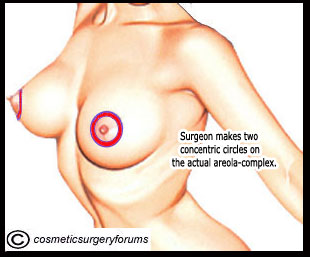 Areola Reduction - Surgeon makes two concentric circles on the actual areola-complex.