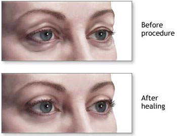 image of upper and lower blepharoplasty