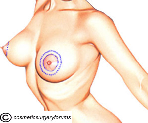 Benelli Lift Incisions - Breast Lift Surgery