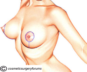 Vertical Lift Incisions - Breast Lift Surgery