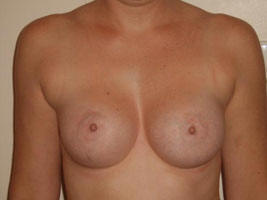 Patient has Grade III Capsular Contracture of the right breast