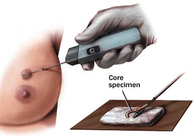 Core Needle Biopsy Procedure