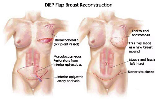 DIEP Flap - Breast Reconstruction