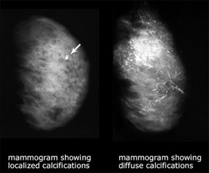Mammogram showing localized calcifications and showing diffuse calcifications