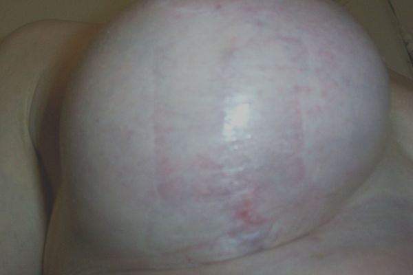 Breast Scars - Breast Surgery