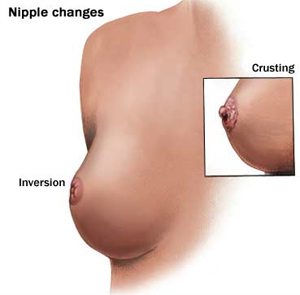 Nipple Changes of the Breast