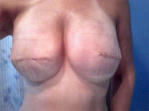 After Photo of corrected Alloderm for Breast Reconstruction