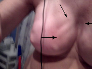 Rippling with Alloderm after Breast Reconstruction