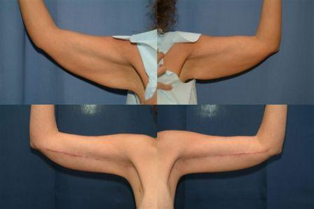 Before and Six Weeks Post Op - Brachioplasty Procedure