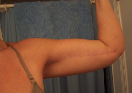 After Photo of Brachioplasty Procedure - Two Years Post Op