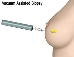 Vacuum Assisted Biopsy