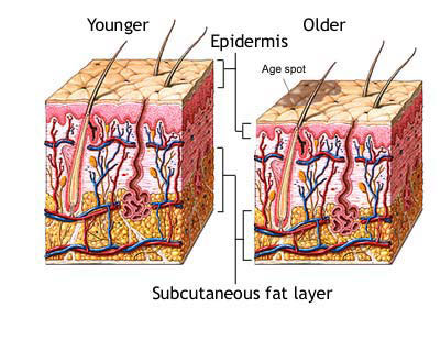 Image showing a cross section of younger skin or epidermis vs. older skin or epidermis.