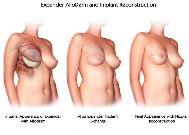 Expander AlloDerm and Implant Reconstruction