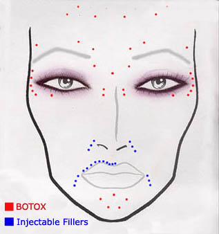 BOTOX Cosmetic Injections on CosmeticSurgeryForums.com