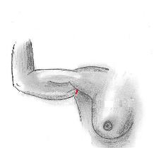 Axillary or Mini Brachioplasty Incision