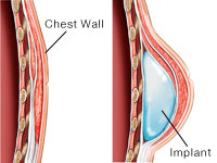 Placement of the breast implant - completely behind the muscle