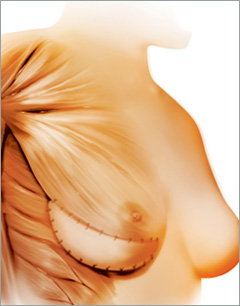 Breast Reconstruction with Alloderm