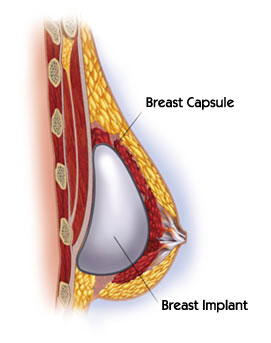 Image showing the breast capsule and the placement of the breast implant