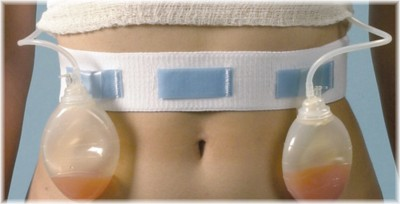 Photo of Surgical Drains in Breast Augmentation or Breast Surgery
