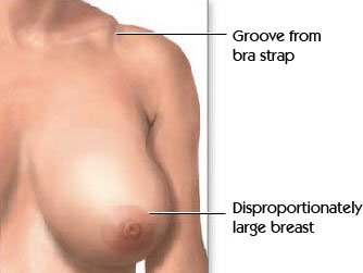 Image showing disproportionately large breast and groove from bra strap - breast reduction