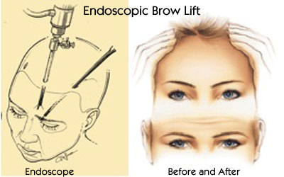 Endoscopic Brow Lift Procedure - Before and After