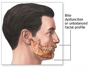 How a Sliding Genioplasty is performed - patient has a bite dysfunction or unbalanced facial profile.