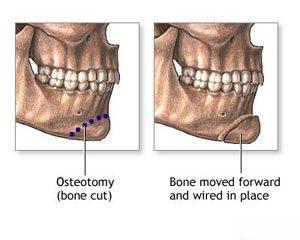 Image showing a osteotomy (bone cut) - bone moved forward and wired into place.