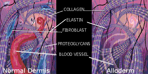 Image comparing a normal dermis to Alloderm (Cymetra) showing: collagen, elastin, fibroblast, proteoglycans, and blood vessels