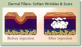 Drawing showing dermal fillers before injection and after injection.  Dermal fillers soften wrinkles and scars.