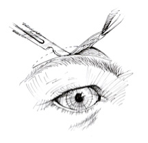 Direct Brow Lift Incision