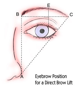 Eyebrow Position for a Direct Brow Lift