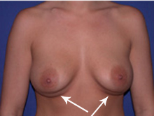 Patient with Double Bubble Deformity after breast implants