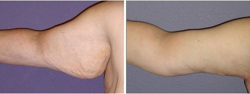 Extended Brachioplasty - Incision extends into the chest area
