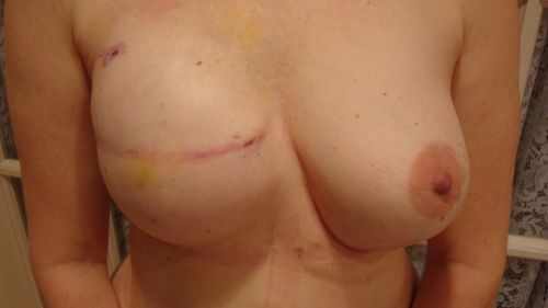 Patient with a single mastectomy and breast reconstruction with a breast implant and fat grafting