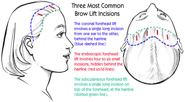 Brow Lift Incision Sites - Three Most Common Incisions:  Coronal Forehead Lift - Endoscopic Forehead Lift - Subcutaneous Forehead Lift