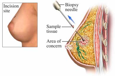 Breast Biopsy for breast cancer