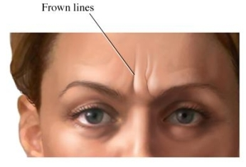 Image of Frown Lines or Glabellar Lines