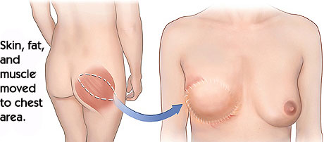 Gluteal Flap Technique - Breast Reconstruction