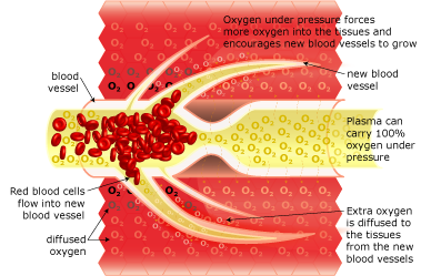 How hyperbaric oxygen therapy works