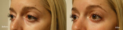"Juvederm injected into the under-eye hollows or ""tear troughs"""