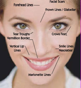 Photo showing Key Injectable Locations on the facial area.