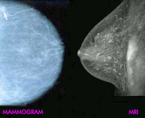 Mammogram vs. MRI - of the breast