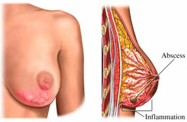 Mastitis of the Breast