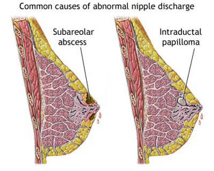 Common causes of abnormal nipple discharge