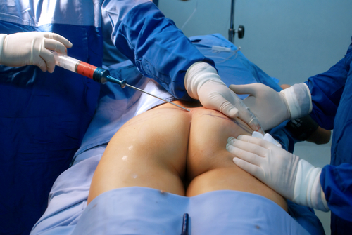 surgeon performing a Brazilian Buttock Lift