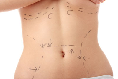 Index of body procedures -  before and after photos on CosmeticSurgeryForums.com